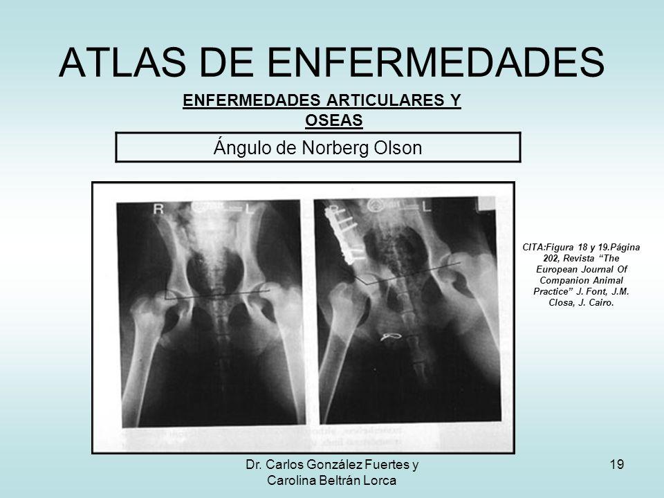 Dr. Carlos González Fuertes y Carolina Beltrán Lorca 19 ATLAS DE ENFERMEDADES ENFERMEDADES ARTICULARES Y OSEAS Ángulo de Norberg Olson CITA:Figura 18