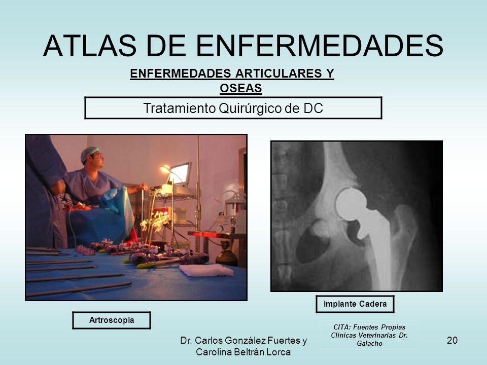 Dr. Carlos González Fuertes y Carolina Beltrán Lorca 20 ATLAS DE ENFERMEDADES ENFERMEDADES ARTICULARES Y OSEAS Tratamiento Quirúrgico de DC Artroscopi