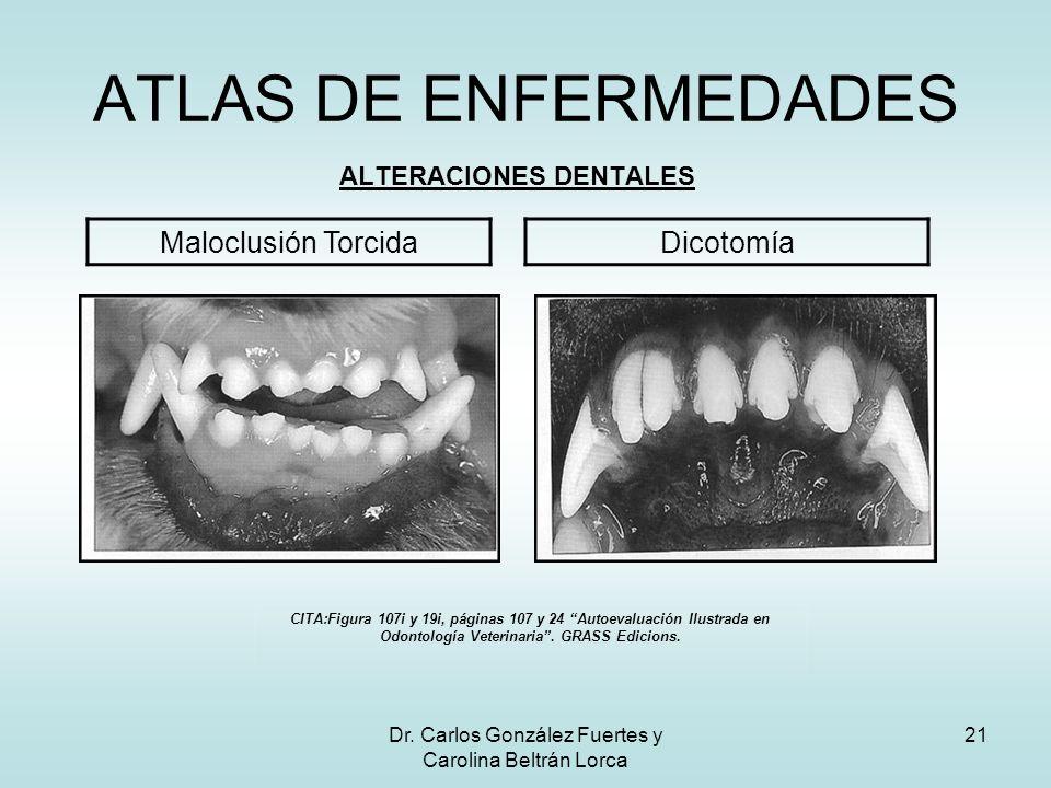 Dr. Carlos González Fuertes y Carolina Beltrán Lorca 21 ATLAS DE ENFERMEDADES ALTERACIONES DENTALES Maloclusión TorcidaDicotomía CITA:Figura 107i y 19