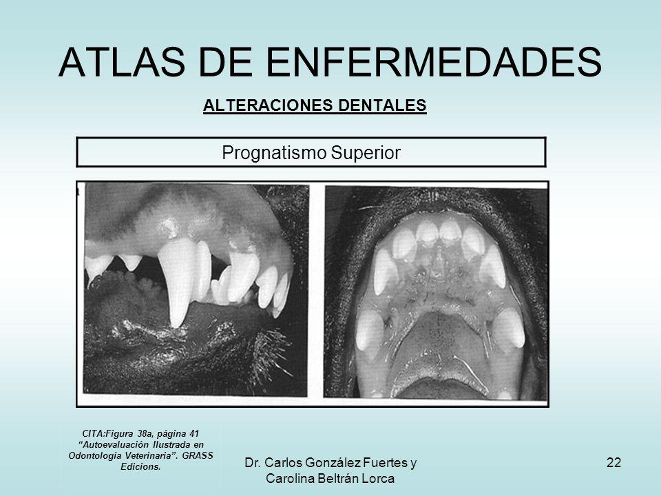 Dr. Carlos González Fuertes y Carolina Beltrán Lorca 22 ATLAS DE ENFERMEDADES ALTERACIONES DENTALES Prognatismo Superior CITA:Figura 38a, página 41 Au