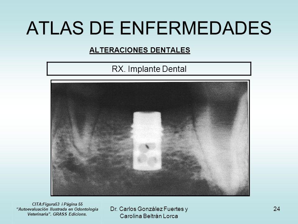 Dr. Carlos González Fuertes y Carolina Beltrán Lorca 24 ATLAS DE ENFERMEDADES ALTERACIONES DENTALES RX. Implante Dental CITA:Figura53 i Página 55 Auto