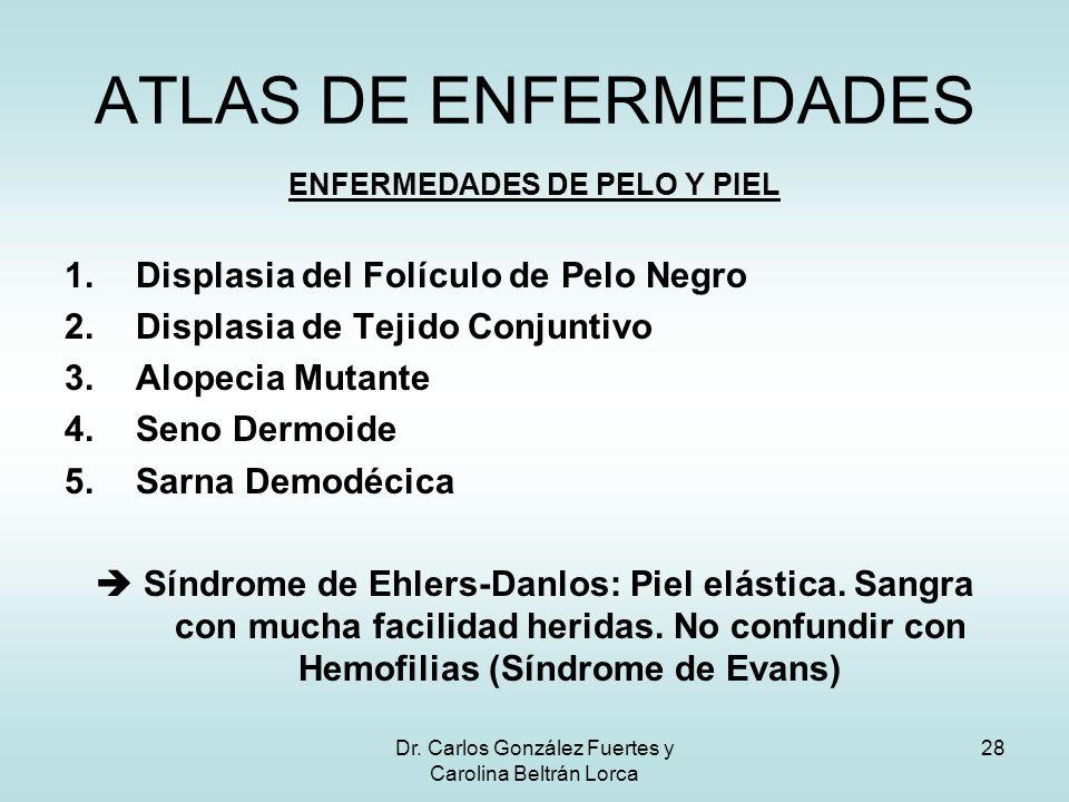 Dr. Carlos González Fuertes y Carolina Beltrán Lorca 28 ENFERMEDADES DE PELO Y PIEL 1.Displasia del Folículo de Pelo Negro 2.Displasia de Tejido Conju