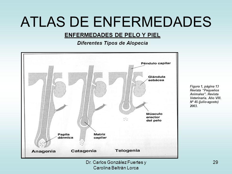 Dr. Carlos González Fuertes y Carolina Beltrán Lorca 29 ATLAS DE ENFERMEDADES ENFERMEDADES DE PELO Y PIEL Diferentes Tipos de Alopecia Figura 1, págin
