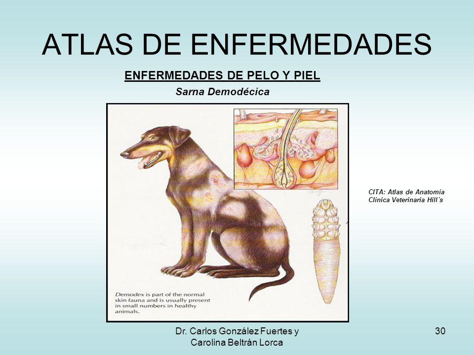 Dr. Carlos González Fuertes y Carolina Beltrán Lorca 30 ATLAS DE ENFERMEDADES ENFERMEDADES DE PELO Y PIEL Sarna Demodécica CITA: Atlas de Anatomía Clí
