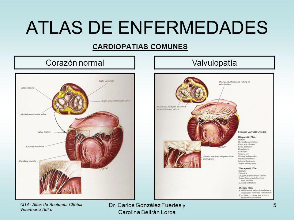 Dr. Carlos González Fuertes y Carolina Beltrán Lorca 5 ATLAS DE ENFERMEDADES CARDIOPATIAS COMUNES Corazón normalValvulopatía CITA: Atlas de Anatomía C