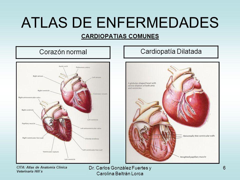 Dr. Carlos González Fuertes y Carolina Beltrán Lorca 6 ATLAS DE ENFERMEDADES CARDIOPATIAS COMUNES Corazón normal Cardiopatía Dilatada CITA: Atlas de A