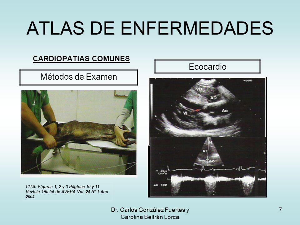 Dr. Carlos González Fuertes y Carolina Beltrán Lorca 7 ATLAS DE ENFERMEDADES CARDIOPATIAS COMUNES Métodos de Examen Ecocardio CITA: Figuras 1, 2 y 3 P