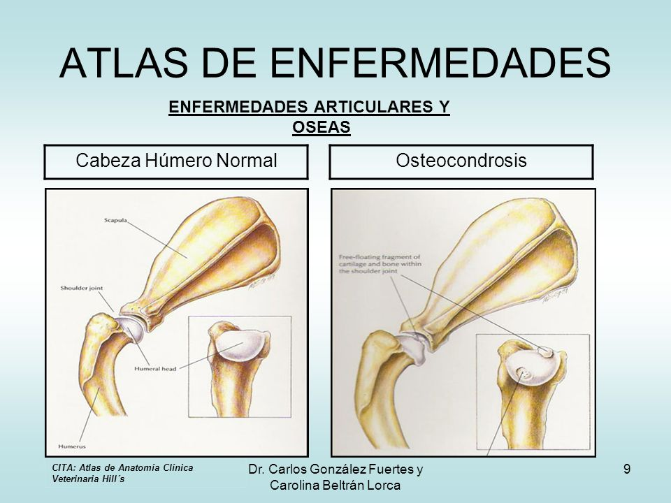 Dr. Carlos González Fuertes y Carolina Beltrán Lorca 9 ATLAS DE ENFERMEDADES ENFERMEDADES ARTICULARES Y OSEAS Cabeza Húmero NormalOsteocondrosis CITA: