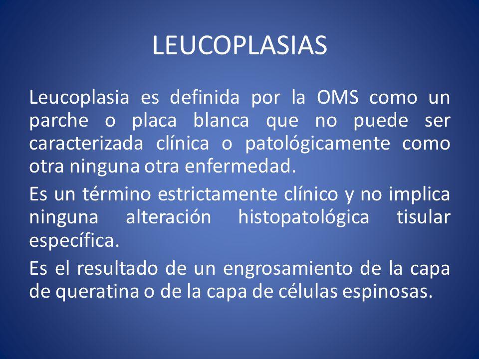 LEUCOPLASIAS Leucoplasia es definida por la OMS como un parche o placa blanca que no puede ser caracterizada clínica o patológicamente como otra ningu