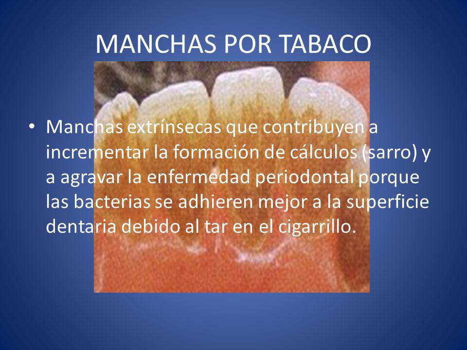 MANCHAS POR TABACO Manchas extrínsecas que contribuyen a incrementar la formación de cálculos (sarro) y a agravar la enfermedad periodontal porque las