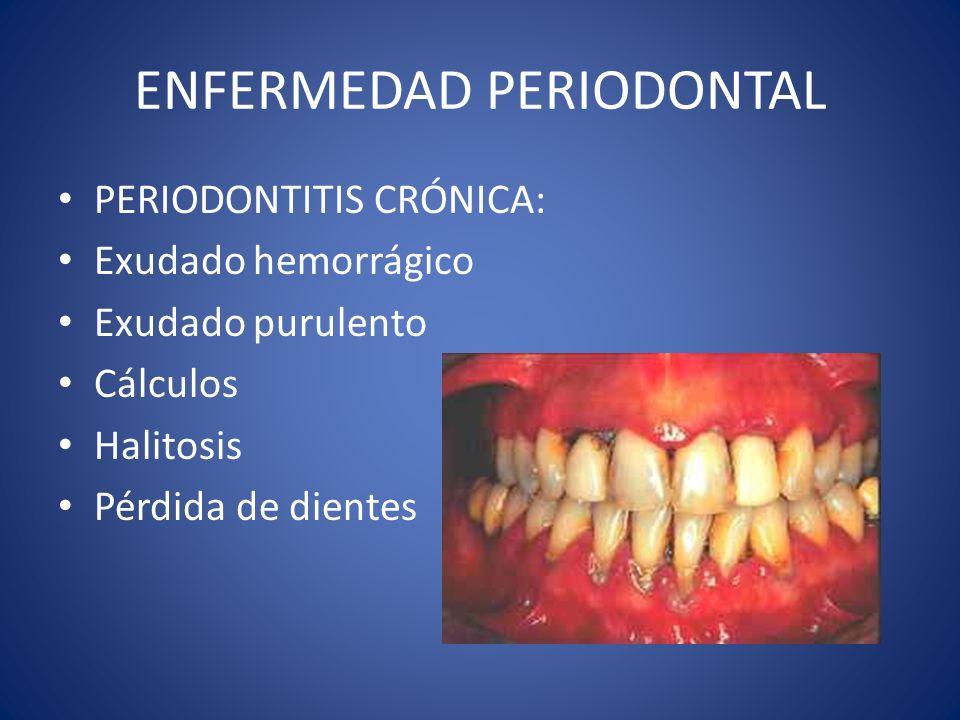 ENFERMEDAD PERIODONTAL PERIODONTITIS CRÓNICA: Exudado hemorrágico Exudado purulento Cálculos Halitosis Pérdida de dientes