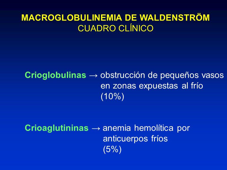 MACROGLOBULINEMIA DE WALDENSTRÖM CUADRO CLÍNICO Crioglobulinas obstrucción de pequeños vasos en zonas expuestas al frío (10%) Crioaglutininas anemia h