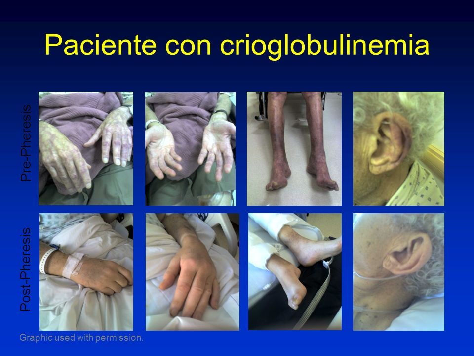 Paciente con crioglobulinemia Pre-Pheresis Post-Pheresis Graphic used with permission.