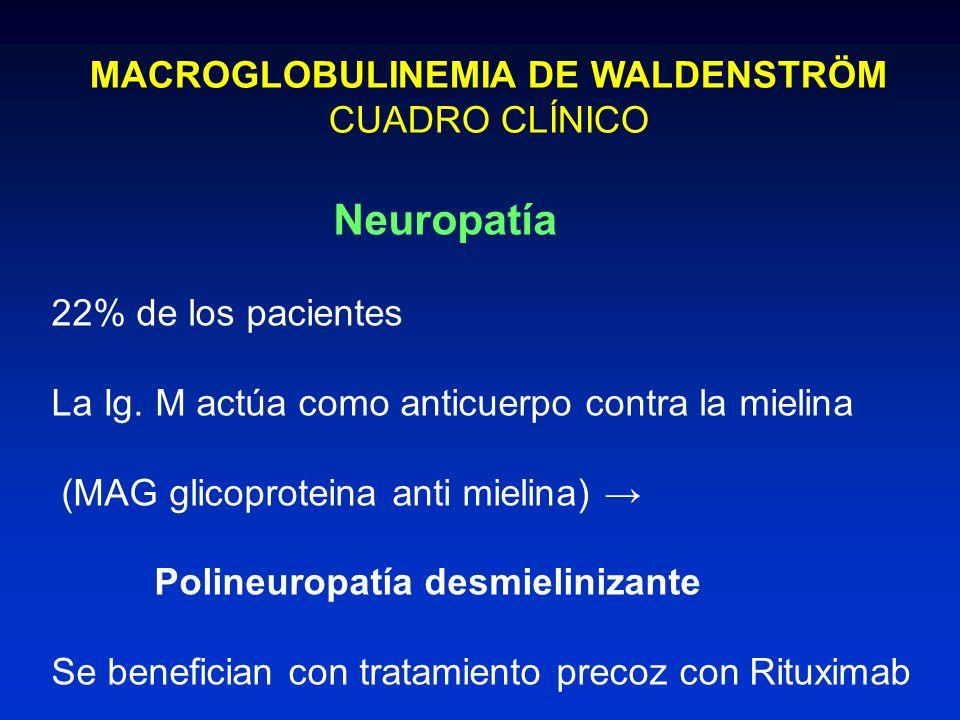 MACROGLOBULINEMIA DE WALDENSTRÖM CUADRO CLÍNICO Neuropatía 22% de los pacientes La Ig. M actúa como anticuerpo contra la mielina (MAG glicoproteina an
