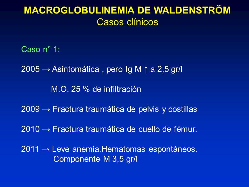 MACROGLOBULINEMIA DE WALDENSTRÖM Casos clínicos Caso n° 1: 2005 Asintomática, pero Ig M a 2,5 gr/l M.O. 25 % de infiltración 2009 Fractura traumática