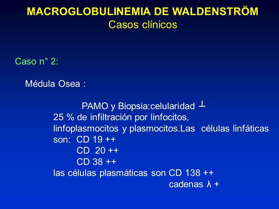 MACROGLOBULINEMIA DE WALDENSTRÖM Casos clínicos Caso n° 2: Médula Osea : PAMO y Biopsia:celularidad 25 % de infiltración por linfocitos, linfoplasmoci
