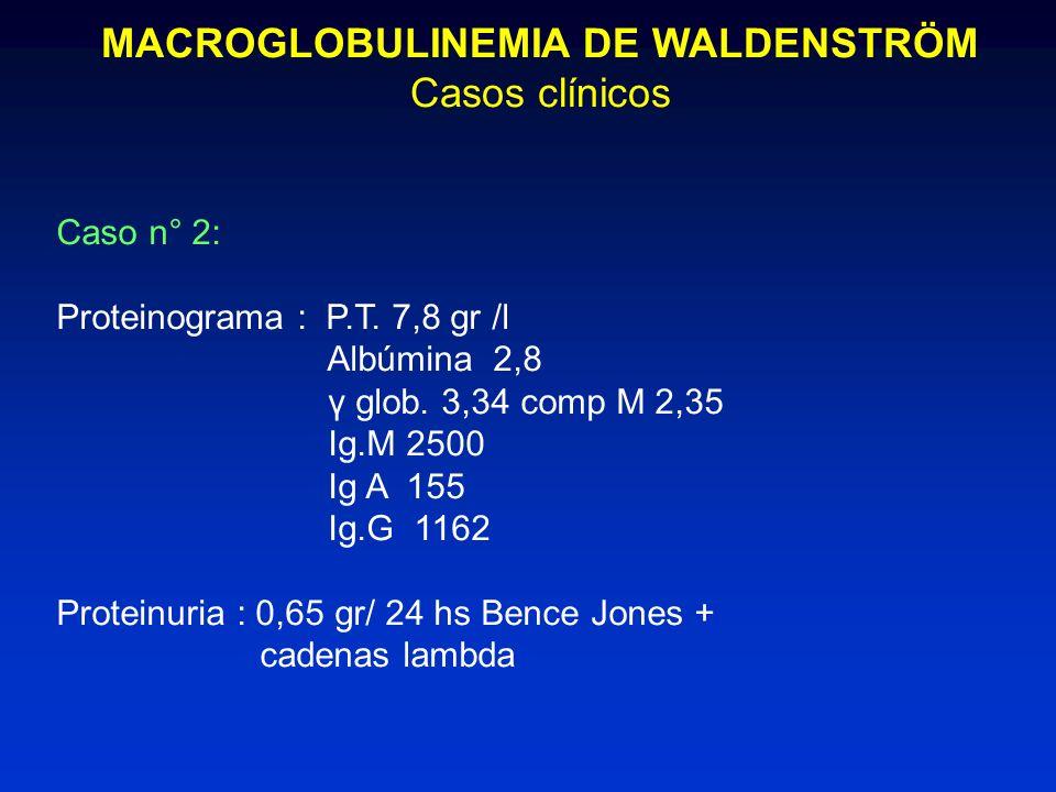 MACROGLOBULINEMIA DE WALDENSTRÖM Casos clínicos Caso n° 2: Proteinograma : P.T. 7,8 gr /l Albúmina 2,8 γ glob. 3,34 comp M 2,35 Ig.M 2500 Ig A 155 Ig.