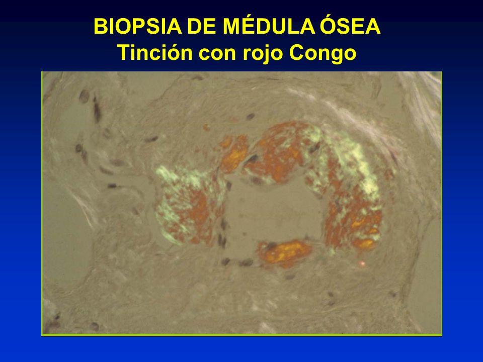 BIOPSIA DE MÉDULA ÓSEA Tinción con rojo Congo