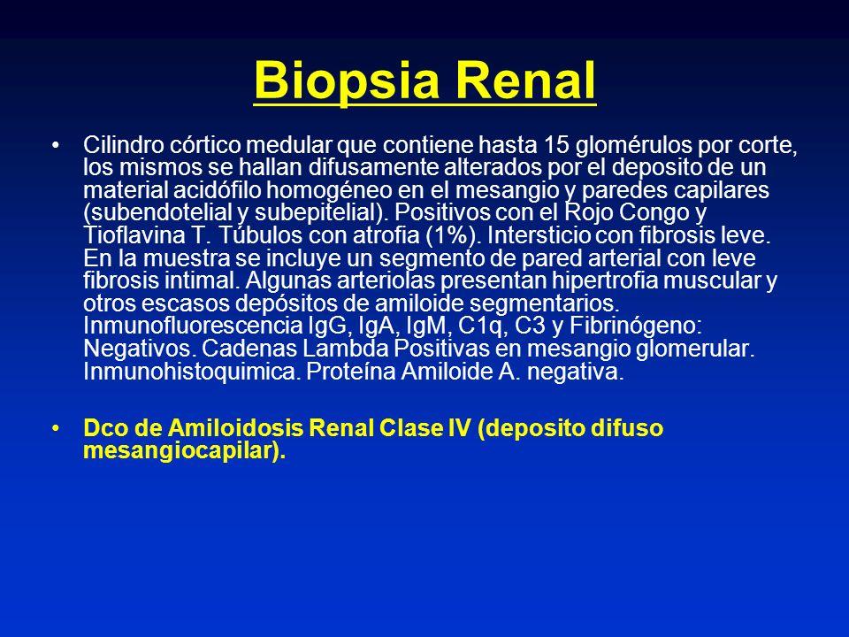 Biopsia Renal Cilindro córtico medular que contiene hasta 15 glomérulos por corte, los mismos se hallan difusamente alterados por el deposito de un ma