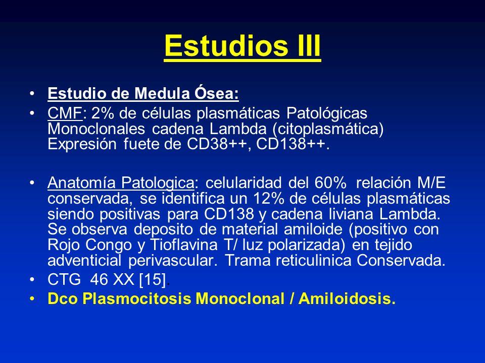 Estudios III Estudio de Medula Ósea: CMF: 2% de células plasmáticas Patológicas Monoclonales cadena Lambda (citoplasmática) Expresión fuete de CD38++,