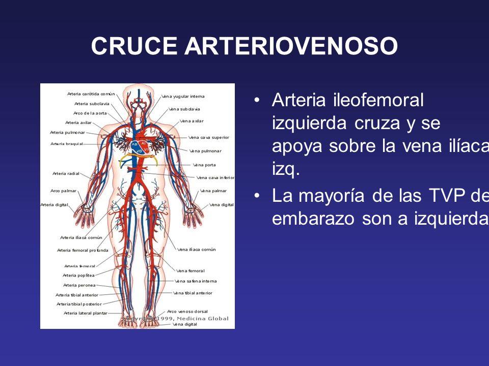 CRUCE ARTERIOVENOSO Arteria ileofemoral izquierda cruza y se apoya sobre la vena ilíaca izq. La mayoría de las TVP del embarazo son a izquierda