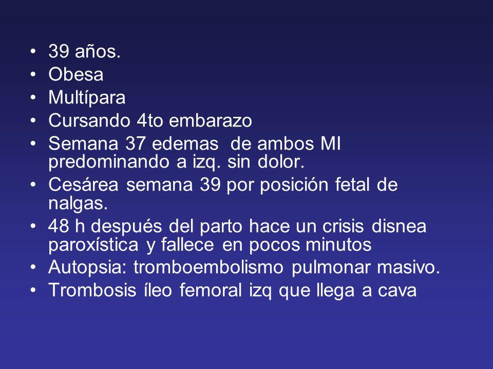 39 años. Obesa Multípara Cursando 4to embarazo Semana 37 edemas de ambos MI predominando a izq. sin dolor. Cesárea semana 39 por posición fetal de nal