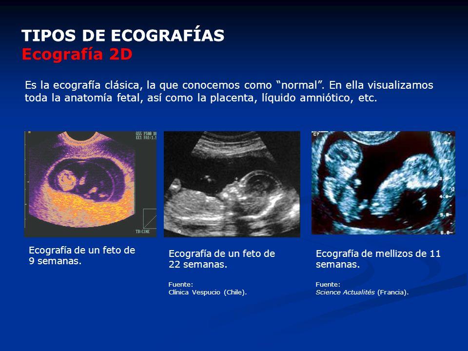 TIPOS DE ECOGRAFÍAS Es la ecografía clásica, la que conocemos como normal. En ella visualizamos toda la anatomía fetal, así como la placenta, líquido