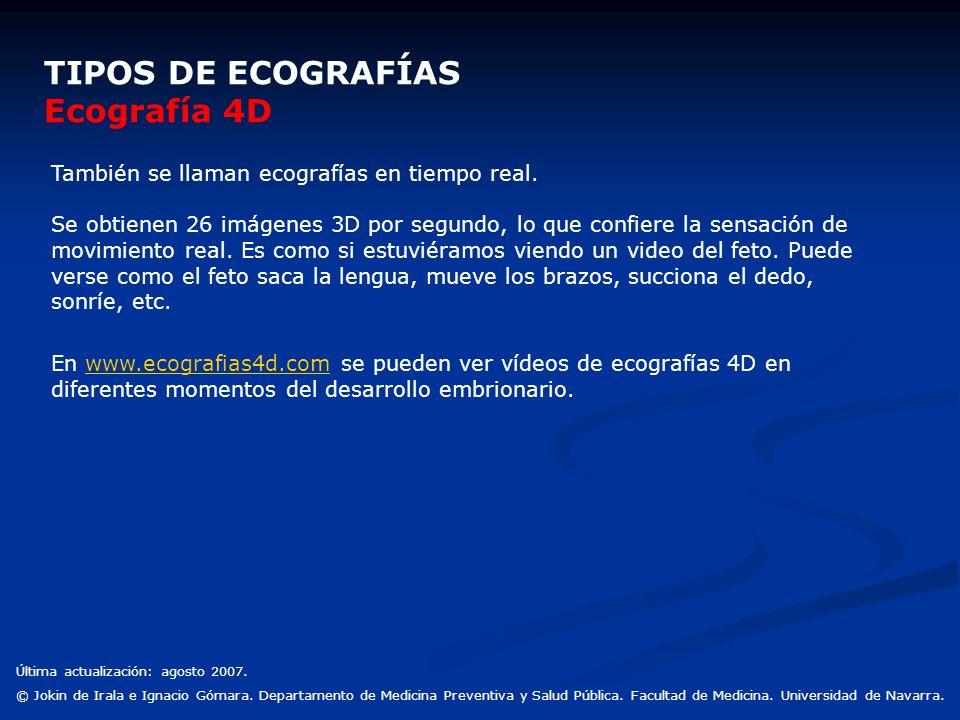 TIPOS DE ECOGRAFÍAS Ecografía 4D También se llaman ecografías en tiempo real. Se obtienen 26 imágenes 3D por segundo, lo que confiere la sensación de