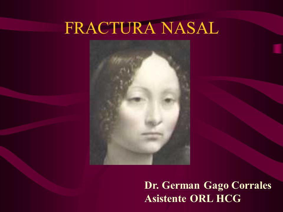 FRACTURA NASAL Dr. German Gago Corrales Asistente ORL HCG Ginevra de Da Vinci