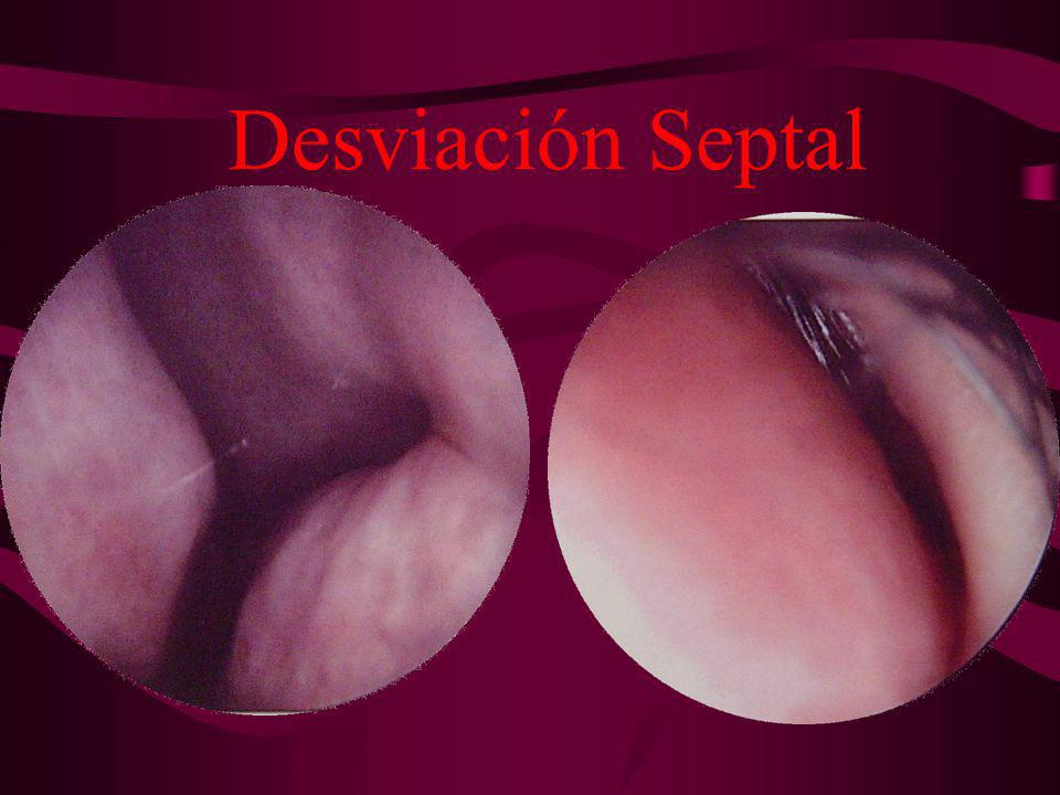 Desviación Septal