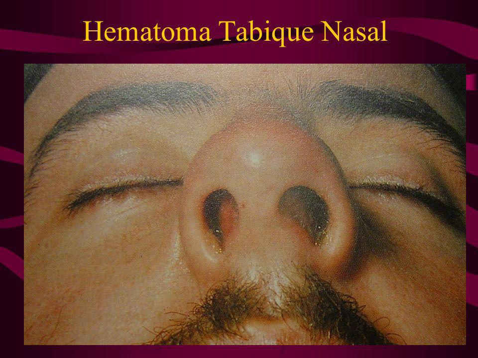 Hematoma Tabique Nasal