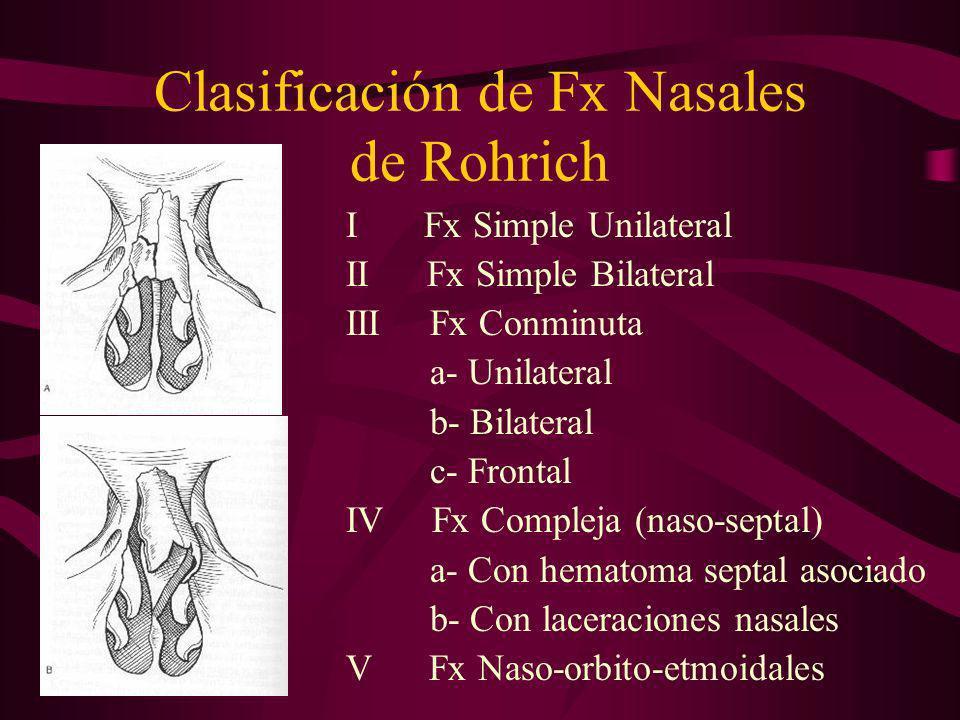 Clasificación de Fx Nasales de Rohrich I Fx Simple Unilateral II Fx Simple Bilateral III Fx Conminuta a- Unilateral b- Bilateral c- Frontal IV Fx Comp