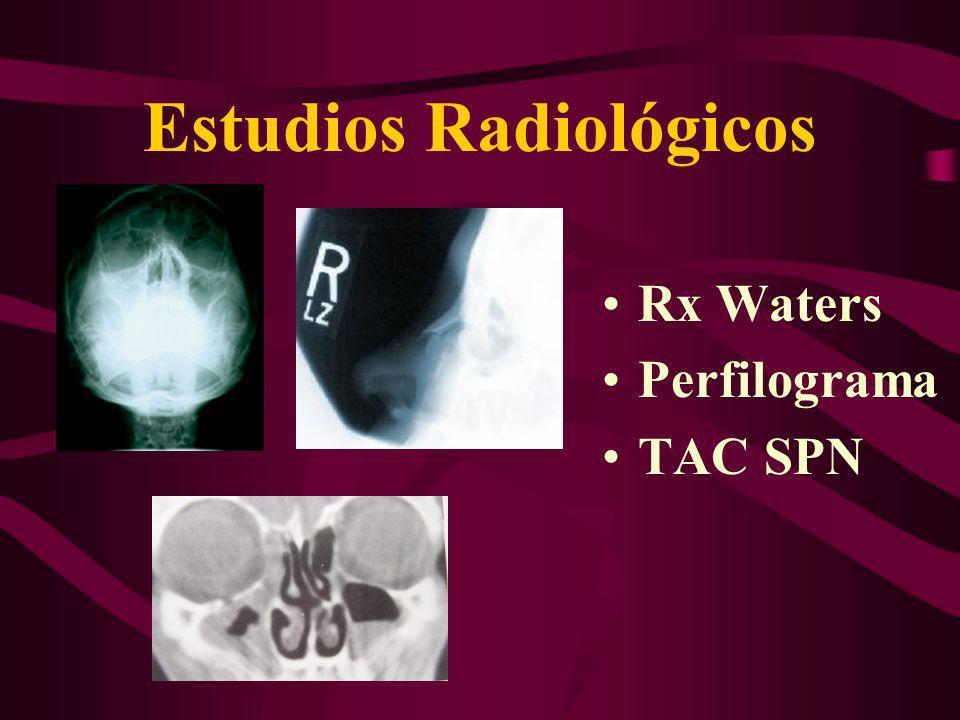 Estudios Radiológicos Rx Waters Perfilograma TAC SPN
