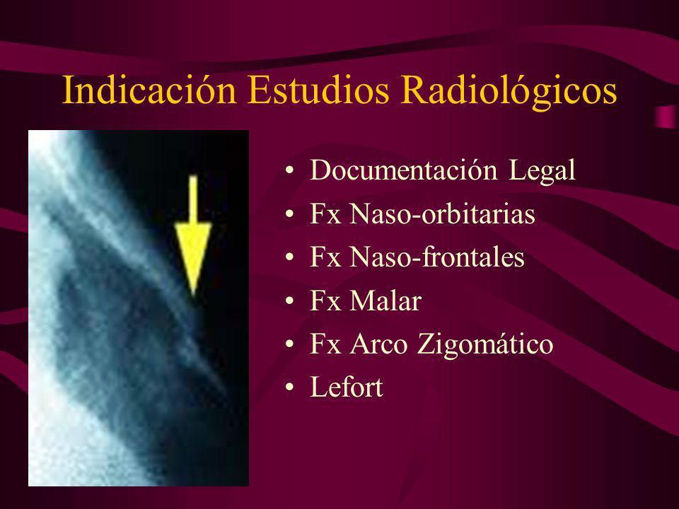 Indicación Estudios Radiológicos Documentación Legal Fx Naso-orbitarias Fx Naso-frontales Fx Malar Fx Arco Zigomático Lefort