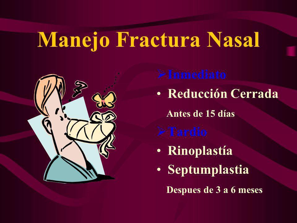 Manejo Fractura Nasal Inmediato Reducción Cerrada Antes de 15 días Tardio Rinoplastía Septumplastia Despues de 3 a 6 meses