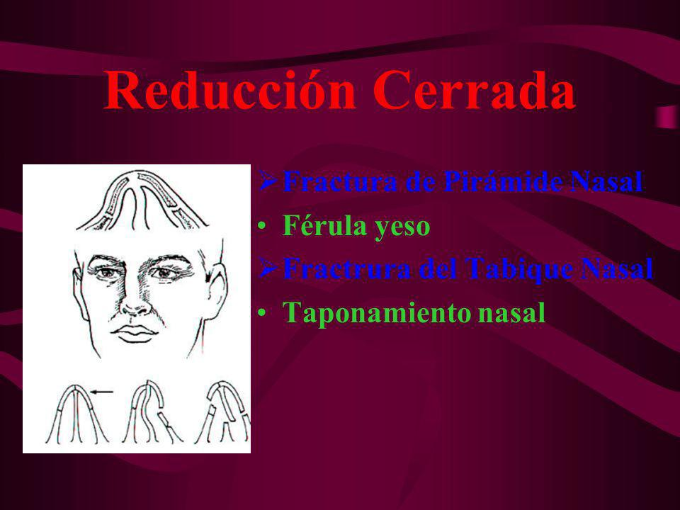 Reducción Cerrada Fractura de Pirámide Nasal Férula yeso Fractrura del Tabique Nasal Taponamiento nasal