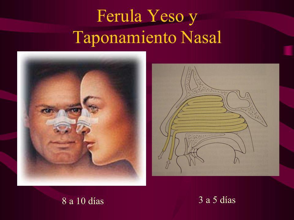 Ferula Yeso y Taponamiento Nasal 8 a 10 días 3 a 5 días
