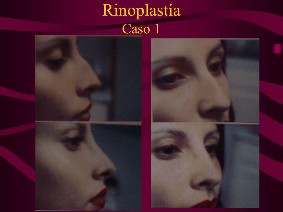 Rinoplastía Caso 1