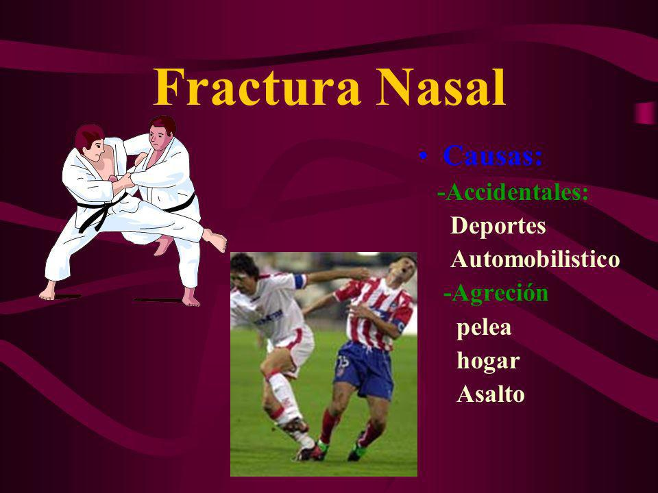 Fractura Nasal Causas: -Accidentales: Deportes Automobilistico -Agreción pelea hogar Asalto