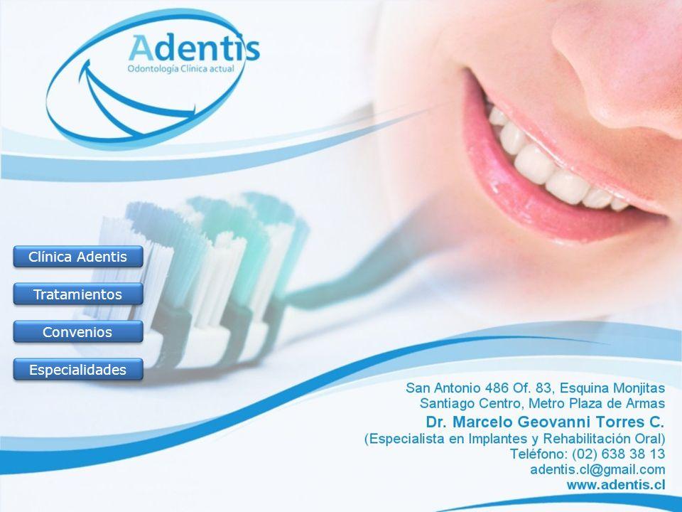 Sobre la Clínica Adentis Inicio Clínica Adentis Tratamientos Convenios Especialidades Terminar Nuestro objetivo es y ha sido dar salud de calidad a un valor adecuado.