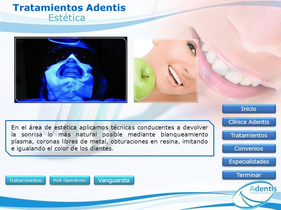 Tratamientos Adentis Inicio Clínica Adentis Tratamientos Convenios Especialidades Terminar En el área de estética aplicamos técnicas conducentes a dev