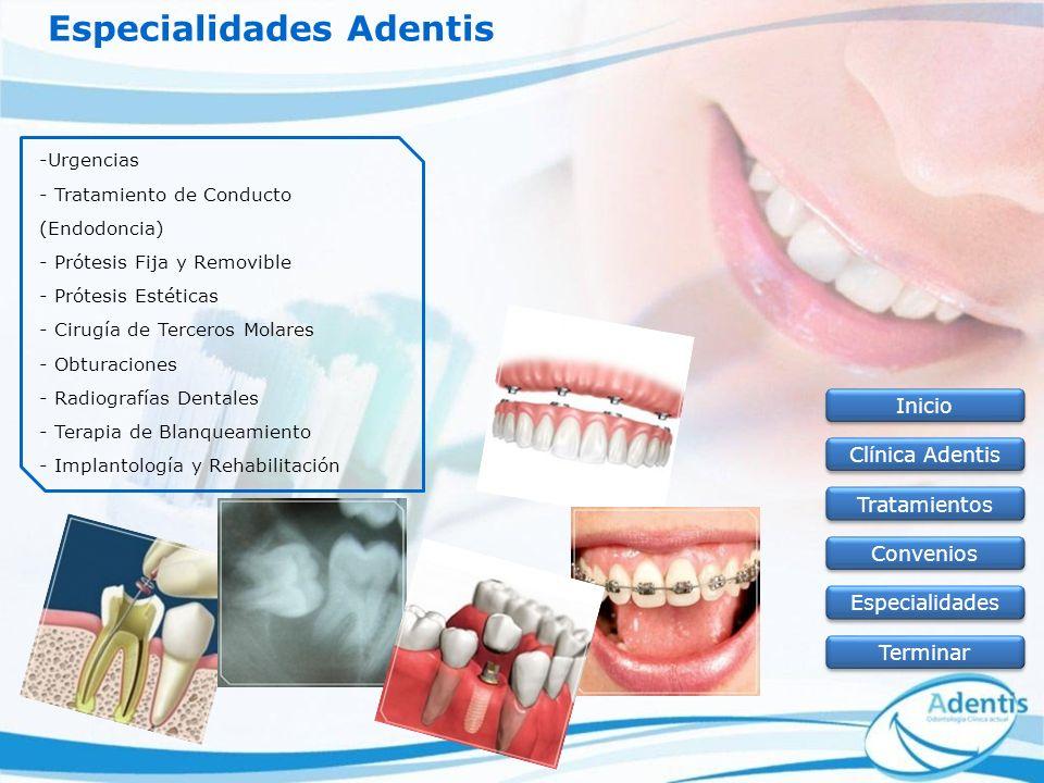 Especialidades Adentis -Urgencias - Tratamiento de Conducto (Endodoncia) - Prótesis Fija y Removible - Prótesis Estéticas - Cirugía de Terceros Molare