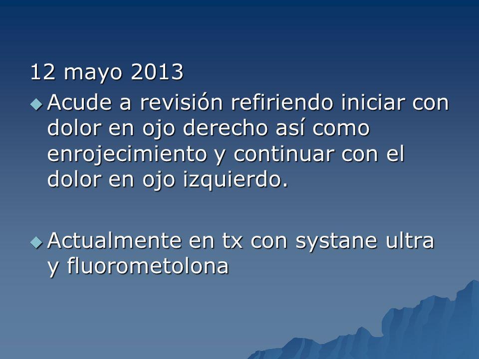 12 mayo 2013 Acude a revisión refiriendo iniciar con dolor en ojo derecho así como enrojecimiento y continuar con el dolor en ojo izquierdo. Acude a r