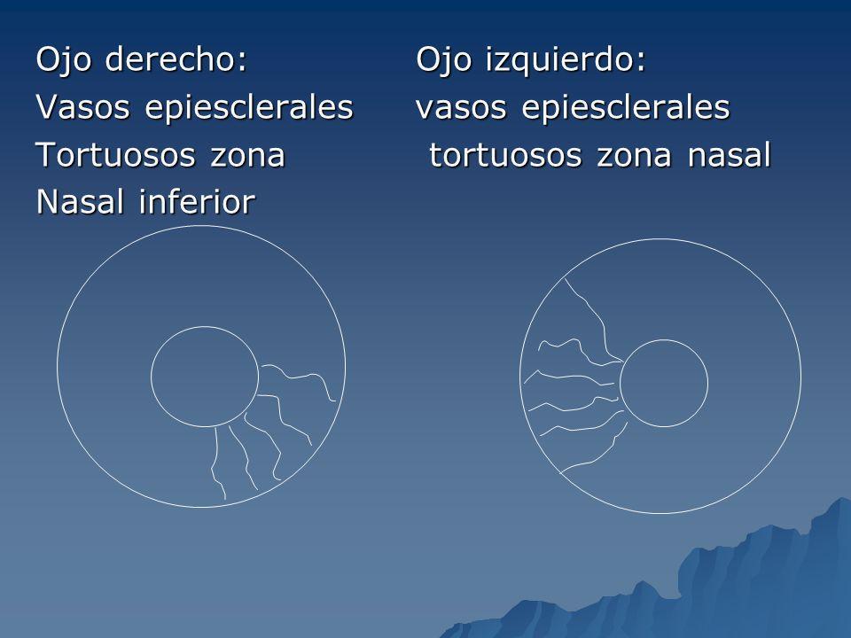 Ojo derecho: Ojo izquierdo: Vasos epiesclerales vasos epiesclerales Tortuosos zona tortuosos zona nasal Nasal inferior