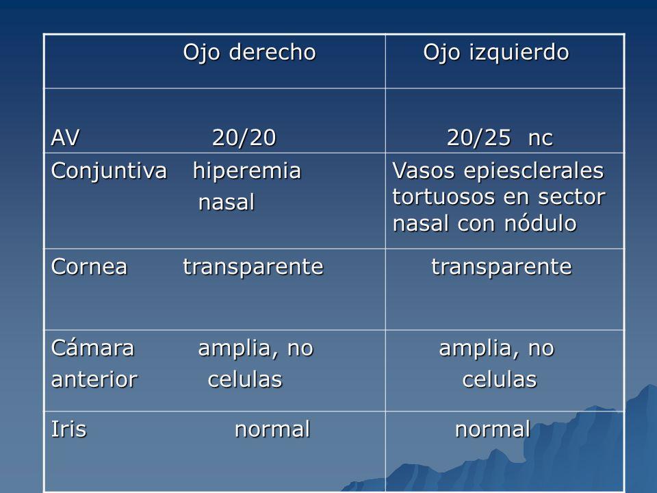 Ojo derecho Ojo derecho Ojo izquierdo Ojo izquierdo AV 20/20 20/25 nc 20/25 nc Conjuntiva hiperemia nasal nasal Vasos epiesclerales tortuosos en secto