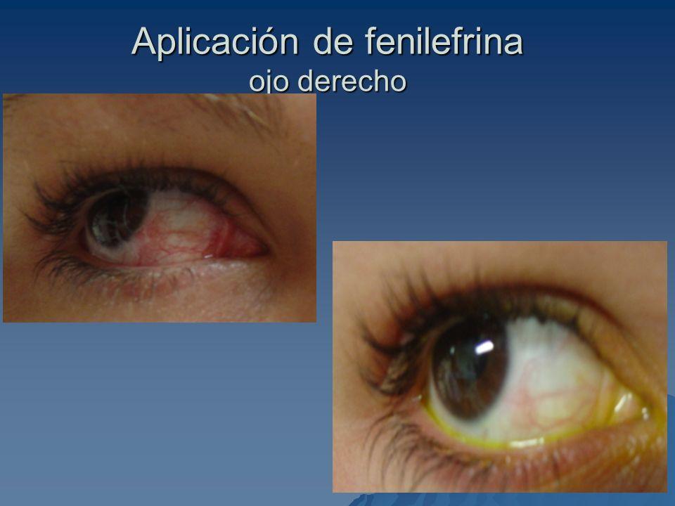 Aplicación de fenilefrina ojo derecho