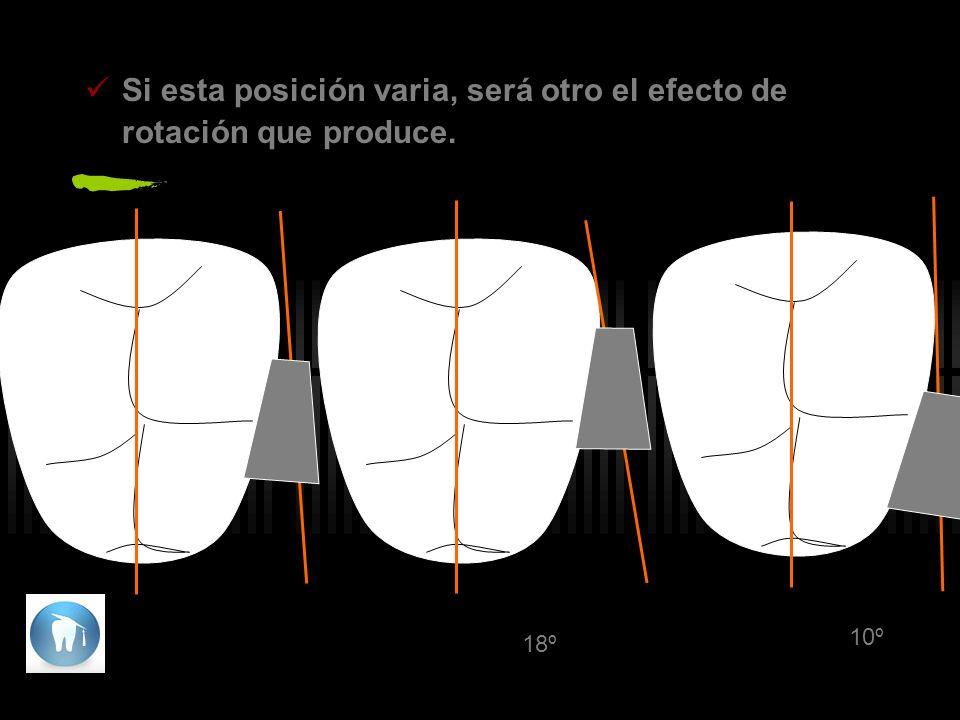 Si esta posición varia, será otro el efecto de rotación que produce. 18º 10º