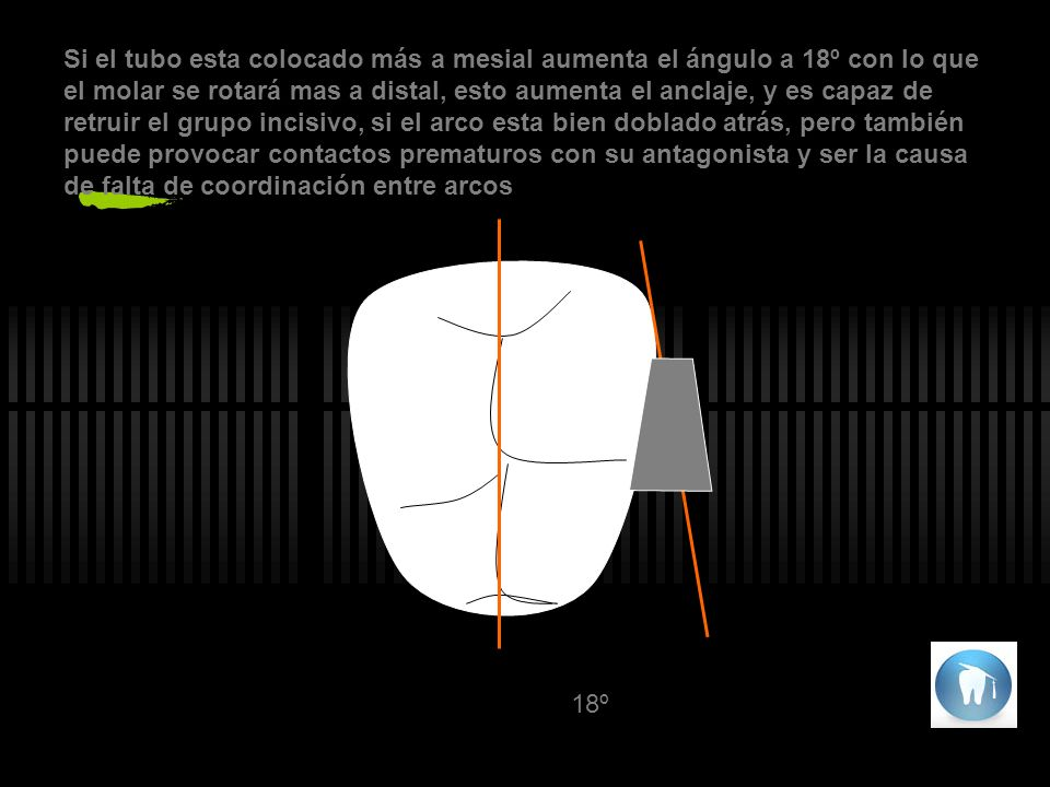 18º Si el tubo esta colocado más a mesial aumenta el ángulo a 18º con lo que el molar se rotará mas a distal, esto aumenta el anclaje, y es capaz de retruir el grupo incisivo, si el arco esta bien doblado atrás, pero también puede provocar contactos prematuros con su antagonista y ser la causa de falta de coordinación entre arcos