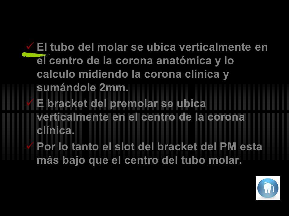 El tubo del molar se ubica verticalmente en el centro de la corona anatómica y lo calculo midiendo la corona clínica y sumándole 2mm.