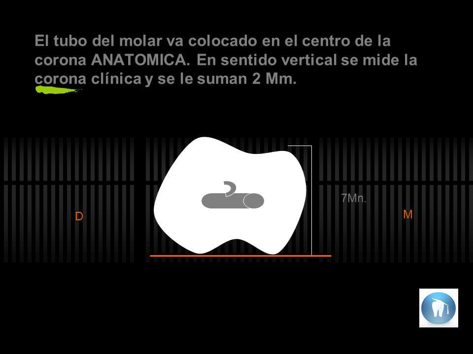 El tubo del molar va colocado en el centro de la corona ANATOMICA.